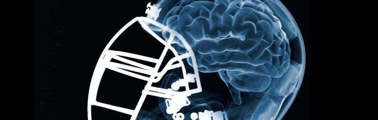A Blood Test Could Be Used To Monitor NFL Players' Brains—if Only We Would Invent It thumbnail image